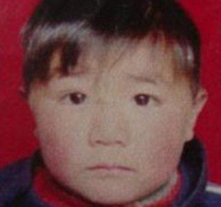 The Boy Without a Face (4 photos)