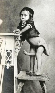 Circus Freaks of the Past (21 photos) 12