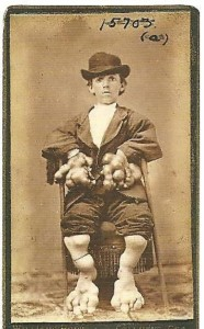 Circus Freaks of the Past (21 photos) 18