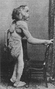 Circus Freaks of the Past (21 photos) 21