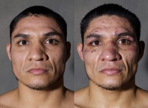 Boxers Before And After (11 photos) 10