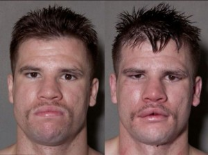 Boxers Before And After (11 photos) 1