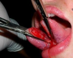Tongue Splitting (38 photos) 31