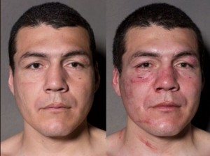 Boxers Before And After (11 photos) 7