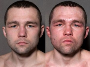 Boxers Before And After (11 photos) 9