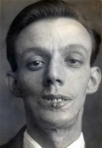 Plastic Surgery in World War I (10 photos) 10