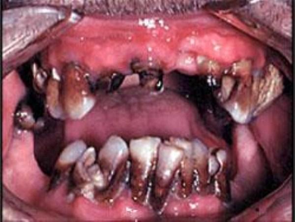 1140 Meth Mouth (17 photos)