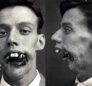 Plastic Surgery in World War I (10 photos)