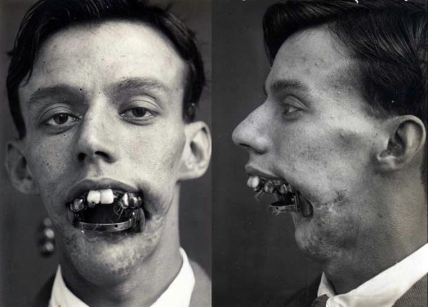 Plastic Surgery in World War I (10 photos) 1