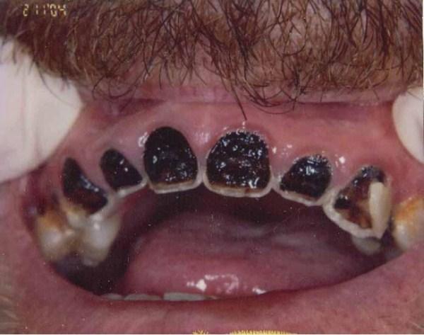 1326 Meth Mouth (17 photos)