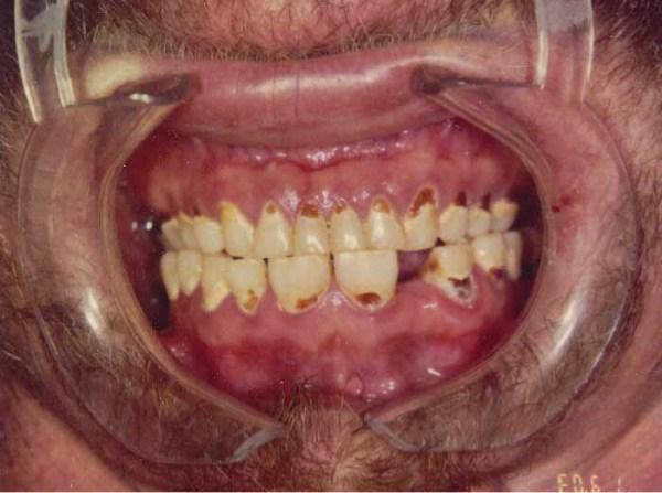 1425 Meth Mouth (17 photos)