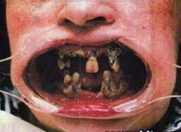1623 Meth Mouth (17 photos)