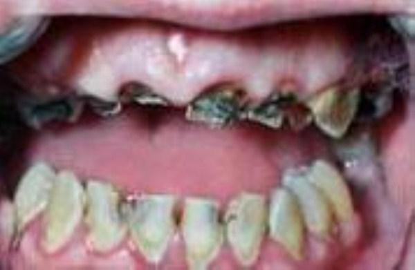2106 Meth Mouth (17 photos)