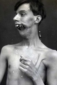 Plastic Surgery in World War I (10 photos) 2