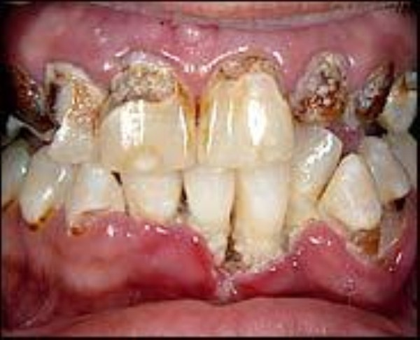 357 Meth Mouth (17 photos)