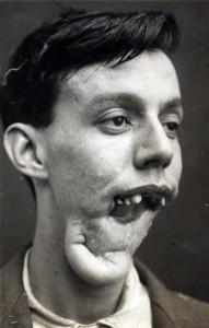 Plastic Surgery in World War I (10 photos) 3