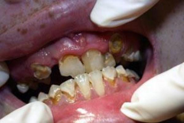 439 Meth Mouth (17 photos)