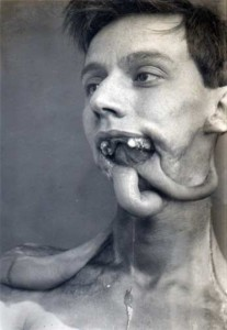 Plastic Surgery in World War I (10 photos) 4