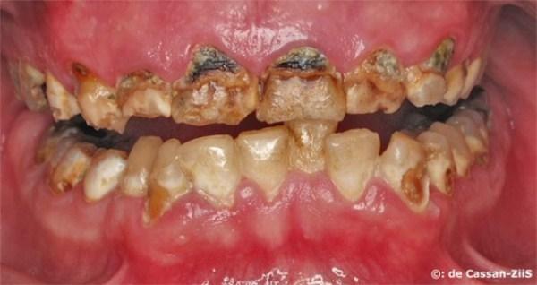 536 Meth Mouth (17 photos)