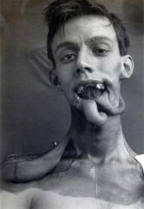 Plastic Surgery in World War I (10 photos) 5