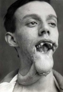 Plastic Surgery in World War I (10 photos) 6