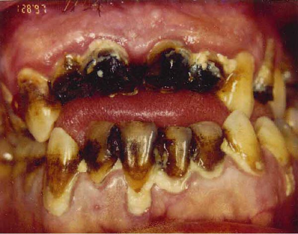 634 Meth Mouth (17 photos)