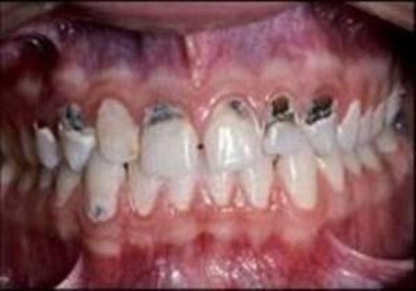733 Meth Mouth (17 photos)