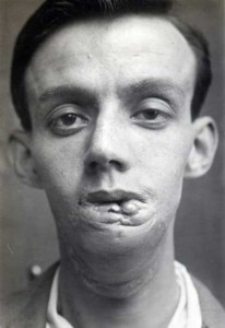 Plastic Surgery in World War I (10 photos) 7