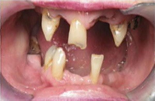 830 Meth Mouth (17 photos)