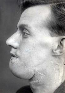Plastic Surgery in World War I (10 photos) 8