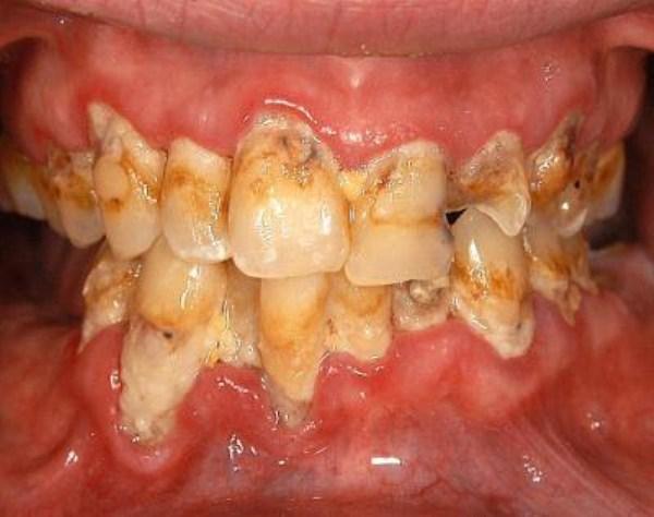 929 Meth Mouth (17 photos)