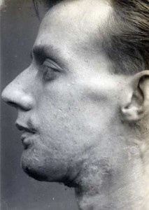 Plastic Surgery in World War I (10 photos) 9