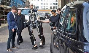 World's First Bionic Man (15 photos) 13