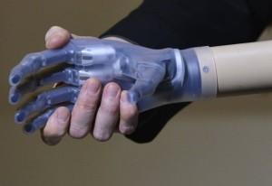World's First Bionic Man (15 photos) 8