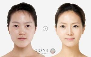 Plastic Surgery in South Korea (31 photos) 10