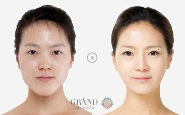 109 Πλαστική Χειρουργική στη Νότια Κορέα (31 φωτογραφίες)