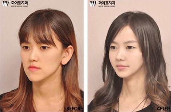 1113 Πλαστική Χειρουργική στη Νότια Κορέα (31 φωτογραφίες)