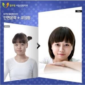 Plastic Surgery in South Korea (31 photos) 12