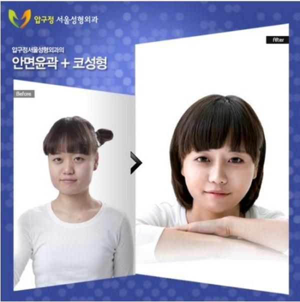 1210 Πλαστική Χειρουργική στη Νότια Κορέα (31 φωτογραφίες)