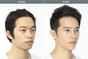 Plastic Surgery in South Korea (31 photos) 1