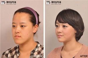 Plastic Surgery in South Korea (31 photos) 13