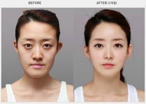 Plastic Surgery in South Korea (31 photos) 16