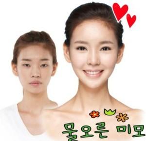 Plastic Surgery in South Korea (31 photos) 18