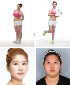Plastic Surgery in South Korea (31 photos) 23