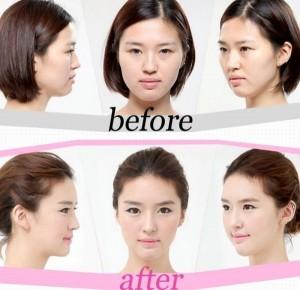 Plastic Surgery in South Korea (31 photos) 24