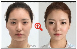 Plastic Surgery in South Korea (31 photos) 25