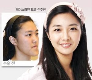 Plastic Surgery in South Korea (31 photos) 26
