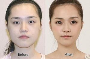 Plastic Surgery in South Korea (31 photos) 27