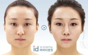 Plastic Surgery in South Korea (31 photos) 28