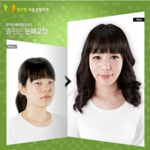 Plastic Surgery in South Korea (31 photos) 29